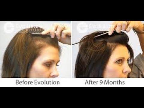 Haz tu Shampoo ANTICAÍDA. ANTICALVICIE. Efecto SEDA y Limpieza Profunda / DIY Hair loss Shampoo