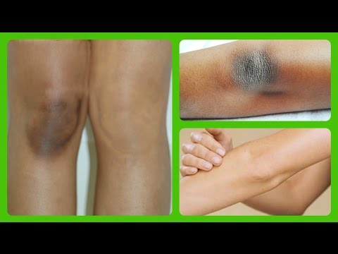 LIGHTEN DARK KNEES AND ELBOWS QUICK & NATURALLY AT HOME