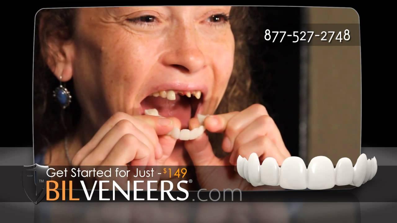 perfect smile veneer отзывы на сайте рекомендации