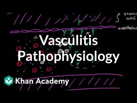 Vasculitis pathophysiology | Circulatory System and Disease | NCLEX-RN | Khan Academy