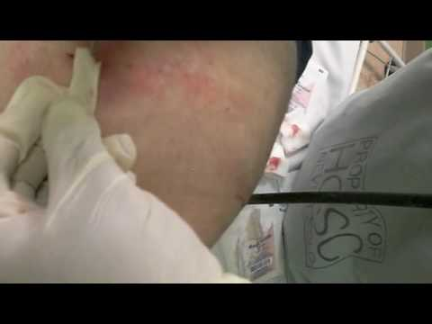 My Ass Surgery '07 part 2