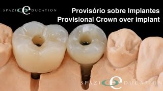 Coroas Provisórias sobre Implantes - Temporary Crowns Over Implants - Dr. Dario Adolfi