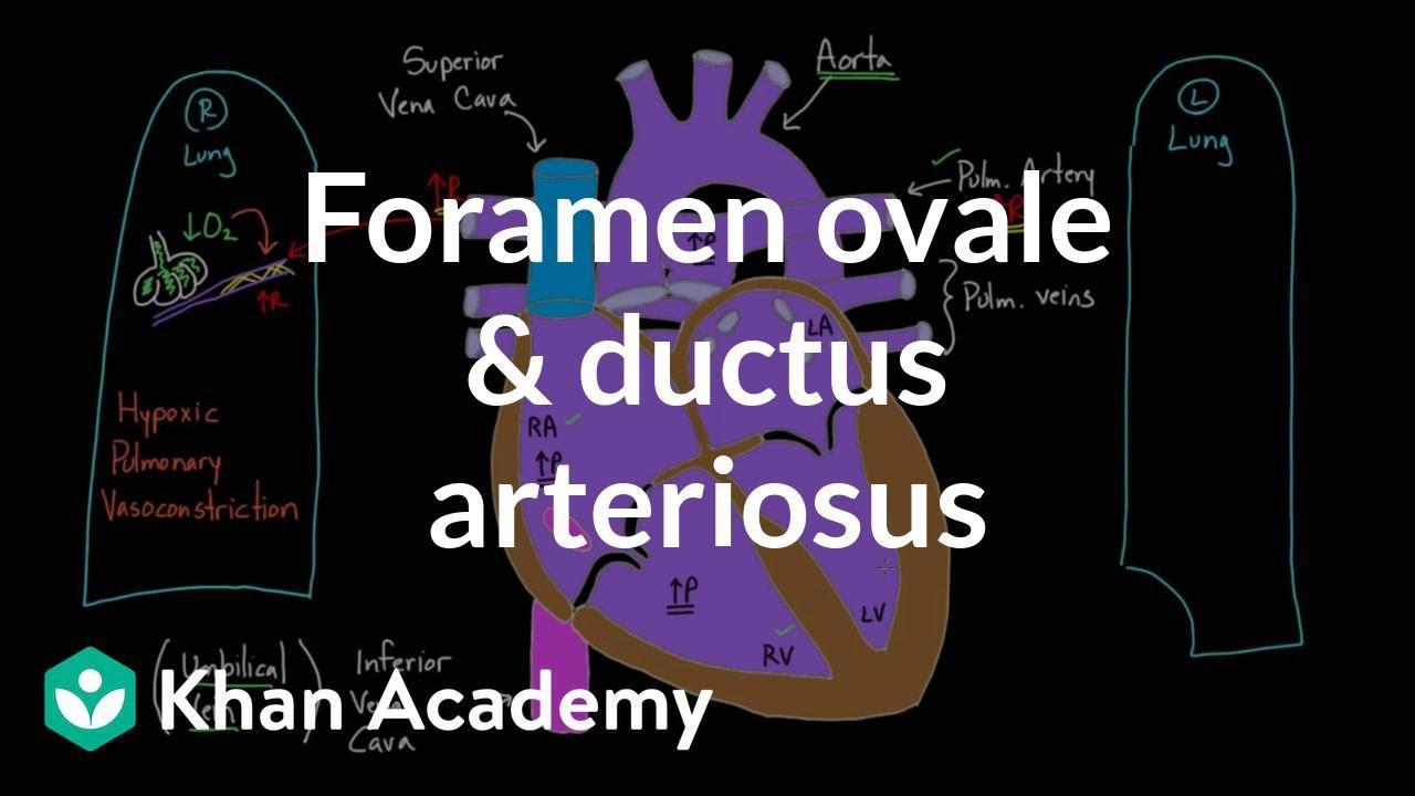 Ductus Arteriosus Botalli And Ductus Arteriosus