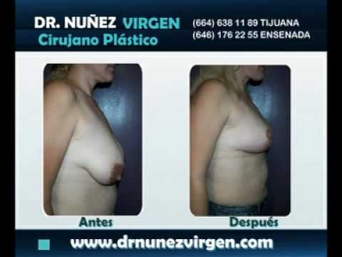 Dr  Manuel Nuñez Virgen - Mamoplastia de Reducción - Reducción de Busto Music Videos