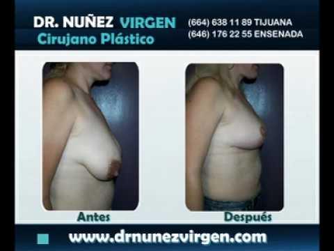 Dr Manuel Nuñez Virgen - Mamoplastia de Reducción - Reducción de Busto Video