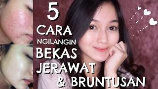 Download Lagu RANDOMTALK #6 - 5 CARA CEPAT MENGHILANGKAN BEKAS JERAWAT & BRUNTUSAN Gratis STAFABAND