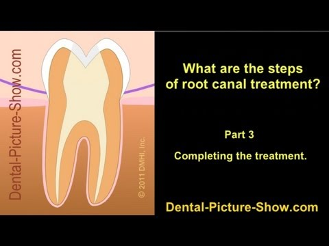 Root canal treatment steps. - Part 3