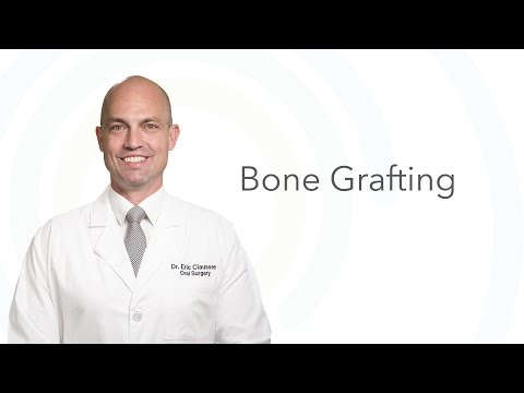 Dr. Eric Claussen Explains Bone Grafting | Oral Surgery & Dental Implant Center of Panama City