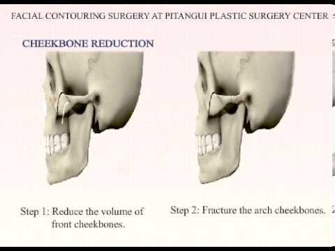 Plastic Surgery Korea_ Jaw reduction & Cheekbone reduction at Pitangui Medical & Beauty