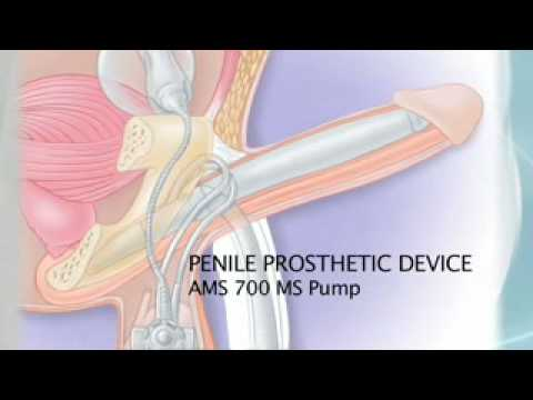 penile injection therapy instructions