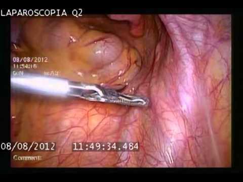 Aparato Genital Femenino Anatomía Normal 08_2012
