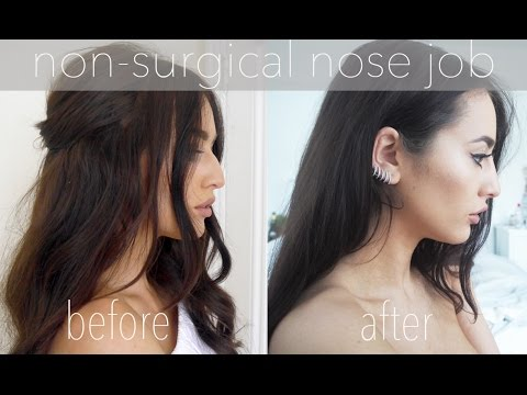 Non-Surgical Nose Job | Before and After | Sophie Milner Fashion Slave