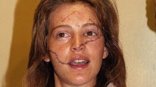 Former Model Who Was Slashed 30 Years Ago is Trying to Help Other Victims