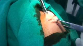 Removal of Lipoma (A Fat swelling)