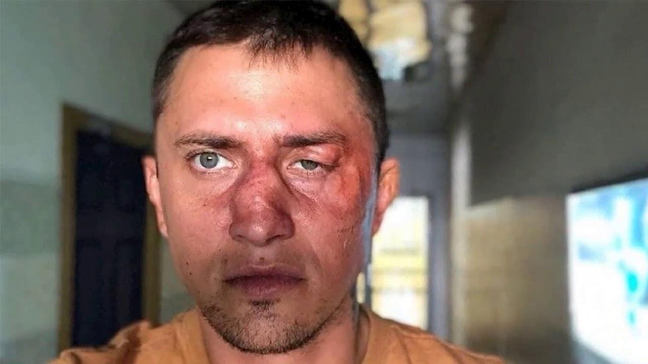 Павла Прилучного госпитализировали с переломом черепа после избиения