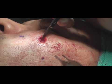 Acne Scar Revision Part Three Excisional Technique by Dr Young Bellevue, WA