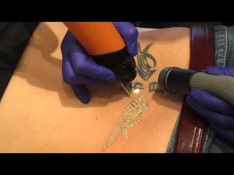 Tattoo Removal Toronto  ( 5 Gay Guys MTV)