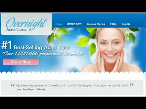Cure acne for good back acne, blemishes ,pimples,rosacea,vulgaris