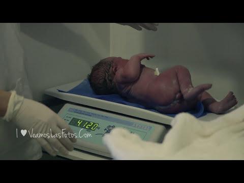 ► Nacimiento Completo de Chloe (Parto Cesárea) | Patricio Peñas