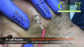 MOLE REMOVAL IN 2 MINUTES BY DR LALIT KASANA (+91-8010840001