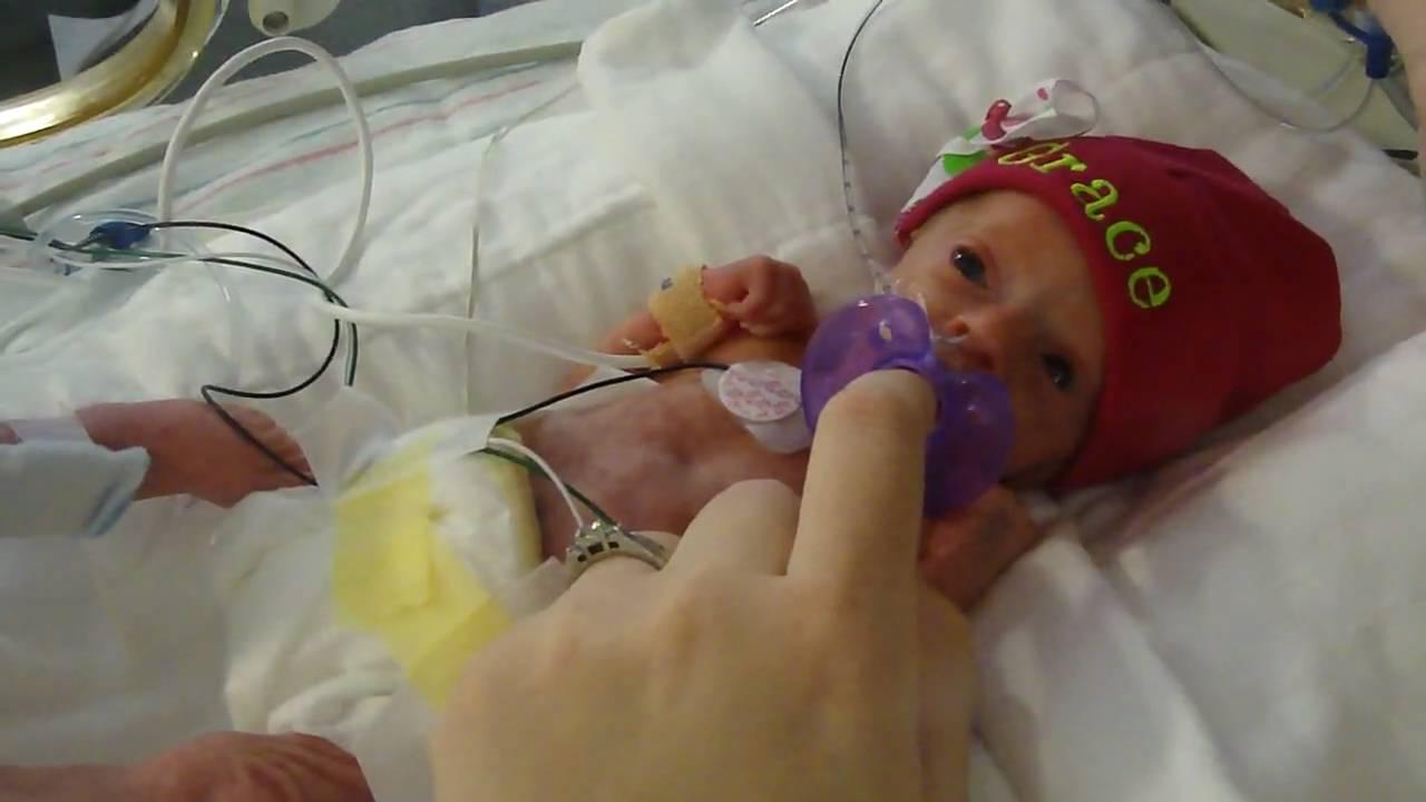 Grace 11 days old 30 week preemie - YouTube