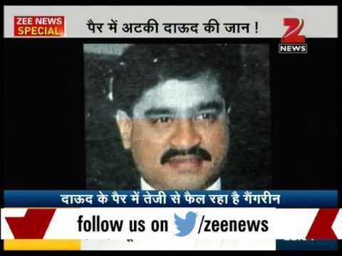 """Dawood suffering from """"gangrene"""" could lead to leg cut"""