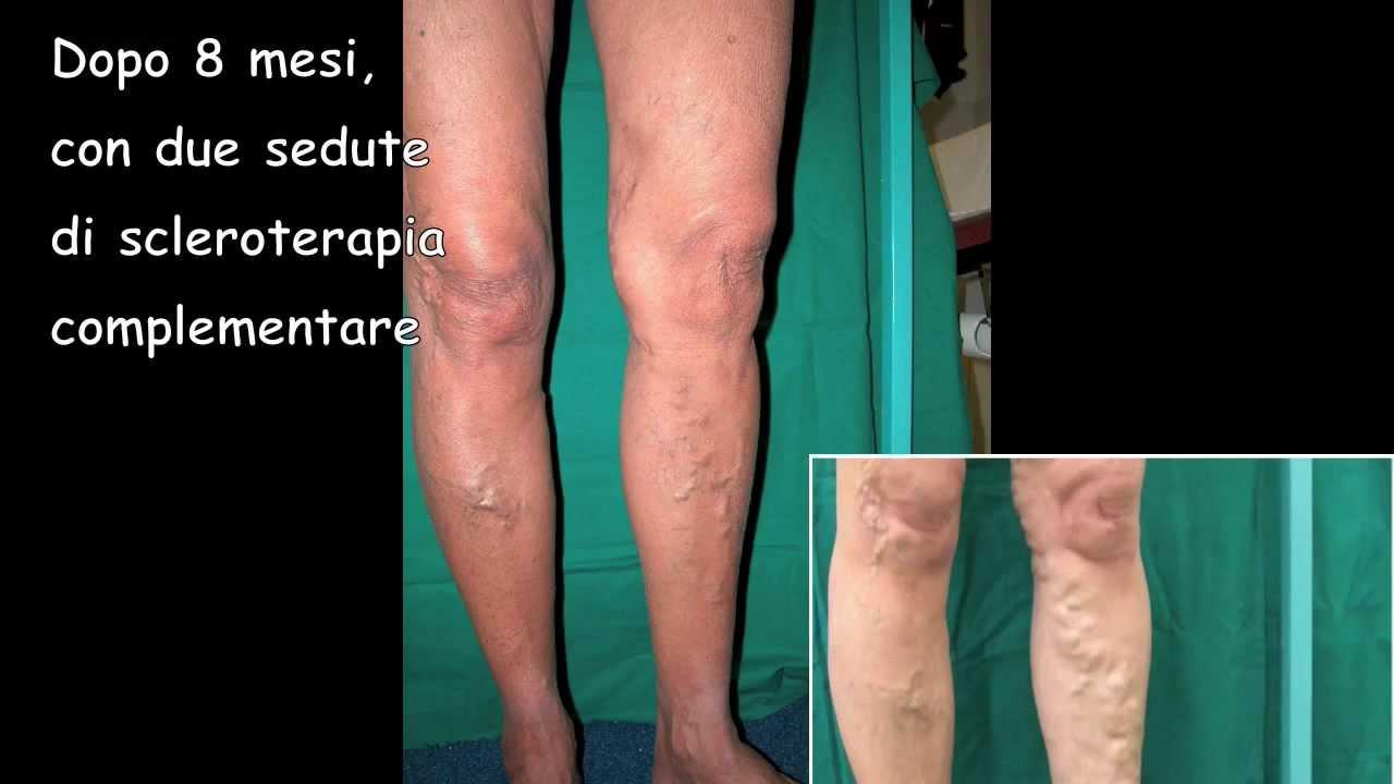 Scleroterapia di vene delle estremità più basse di Togliatti