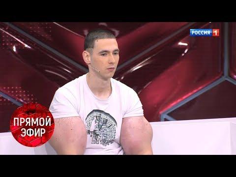 Руки-базуки: Ради славы в интернете. Андрей Малахов. Прямой эфир. Трансляция от 01.12.17