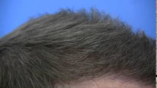 Hair Transplant Vancouver Canada