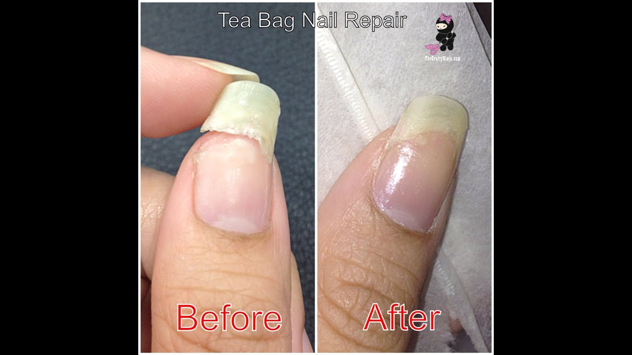 split nail bed