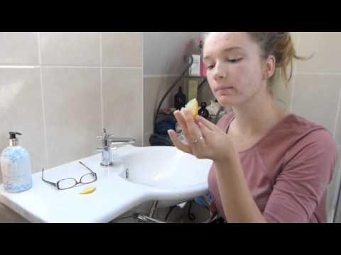 Managing Acne: Lemon and Water