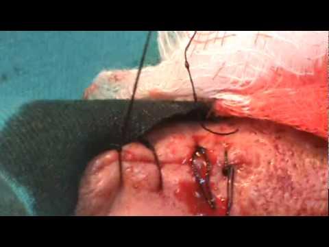 Cirugía de tumor benigno de piel en cara- Parte 2- Sutura herida operatoria