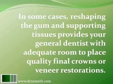Cosmetic Crown Lengthening to Correct a Gummy Smile