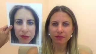 Voluma Before & After