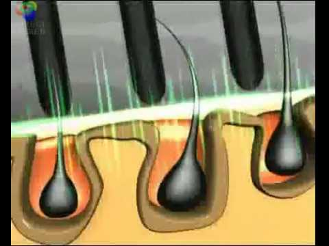 Power Grow Comb Laser Hair Loss Treatment.flv