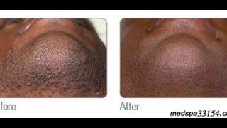 Laser Hair Removal in Miami for Black Men