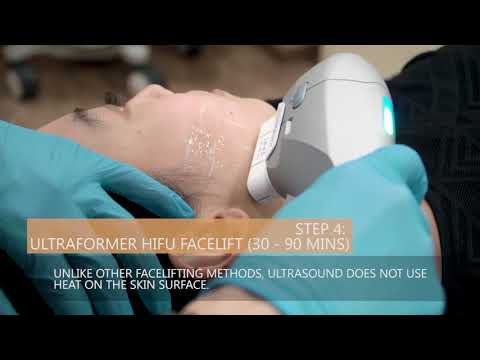 Dr Chua Cheng Yu Performs Ultraformer HIFU Facelift