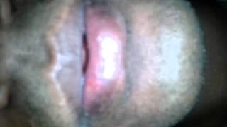 Sexbd