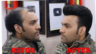 Hair Patch For Man | Hair Transformation | Q6 | Front Lace Hair Patch By Master  RIZY |9599858612