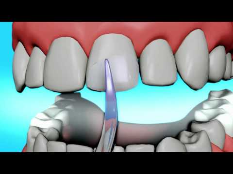 Dental Bonding Video | Tooth Bonding