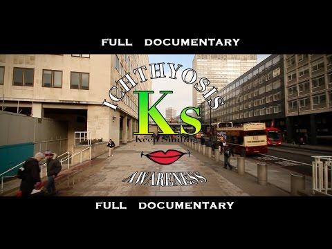 Ichthyosis Awareness (KEEPSMILING CHARITY) Full Short Documentary