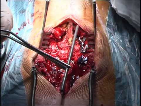 Si puede levantarse la temperatura a la osteocondrosis lumbar