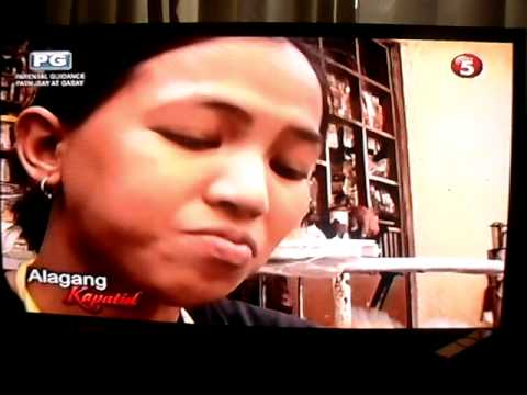 Dental Implants Manila in Channel 5- Alagang Kapatid -Ep 2, Part 1
