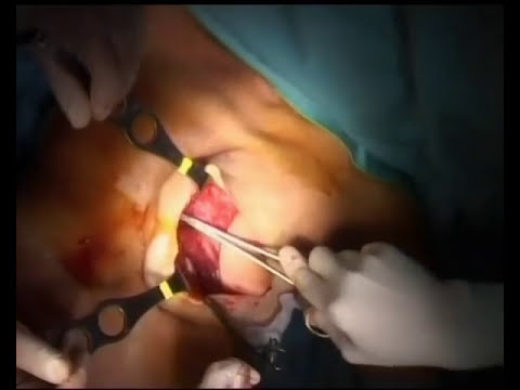 Mastectomia e Lembo Gran Dorsale