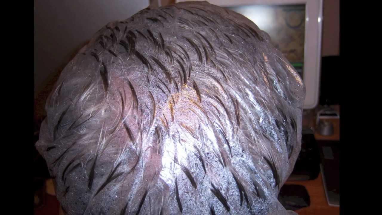 Head Lice Eggs Vs Dandruff