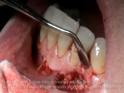 Atlanta Periodontist Georgia GA Cyst Removal Bone Grafting Surgery