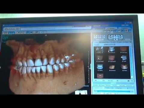 Dentist in Rohnert Park and Dental Impants