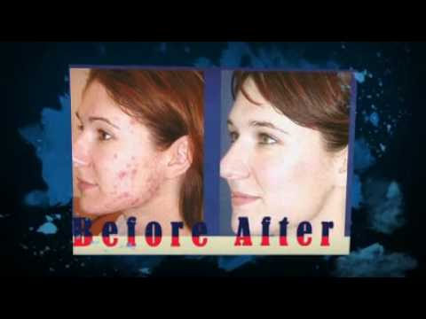 Tetracycline Acne Treatment