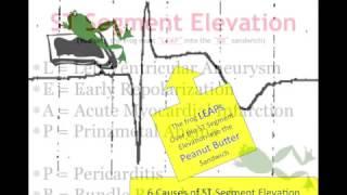 Teaching 12 Lead EKG: STEMI or early repol?