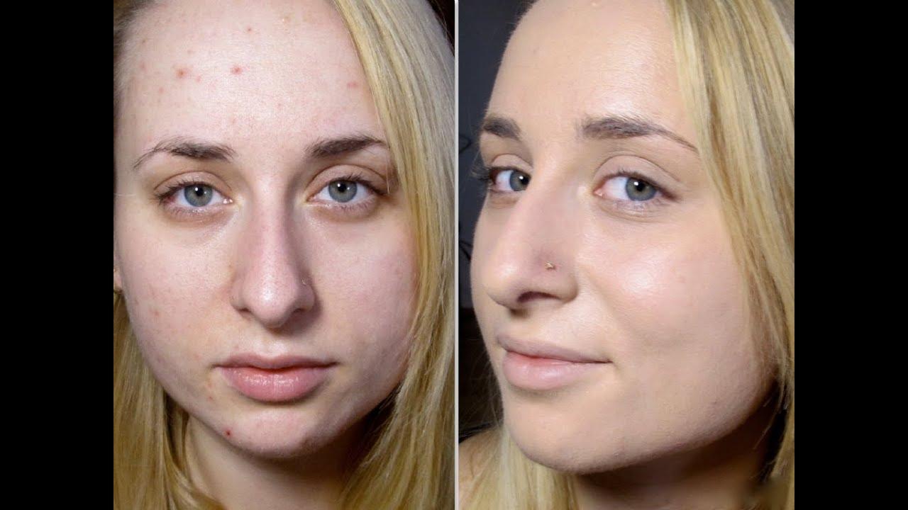 Test PodkŁadu Kobo Ideal Cover Make Up KryjĄcy TrĄdzik
